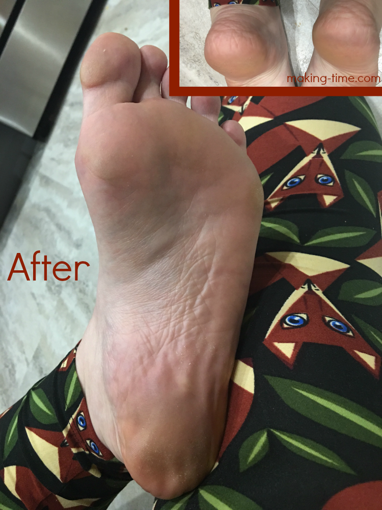 Wonder if those foot mask things work? I've got the answer for you and I think you'll be amazed! Join me on my 10 day foot mask journey and see just what type of results I got. #healthyfeet #Purederm #footmask