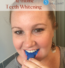 Professional & Affordable At-Home Teeth Whitening | #SmileBrilliant #teethwhitening #giveaway